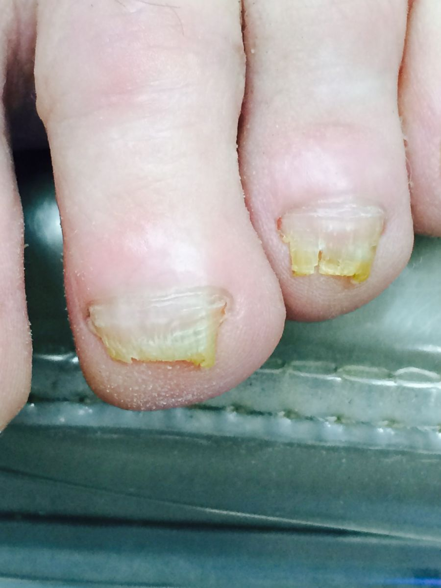 Healing Fungus To 2 3 Toe Nails After Hammer Surgery With Only His Are Improving Rd Toes Pt Is In Construction